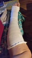 Resting my crook leg ha ha